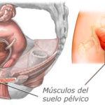 Ejercicios de Kegel