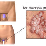 Verrugas genitales
