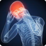 Dolor de cabeza o cefalea postcoital
