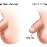 Más sobre la circuncisión rutinaria